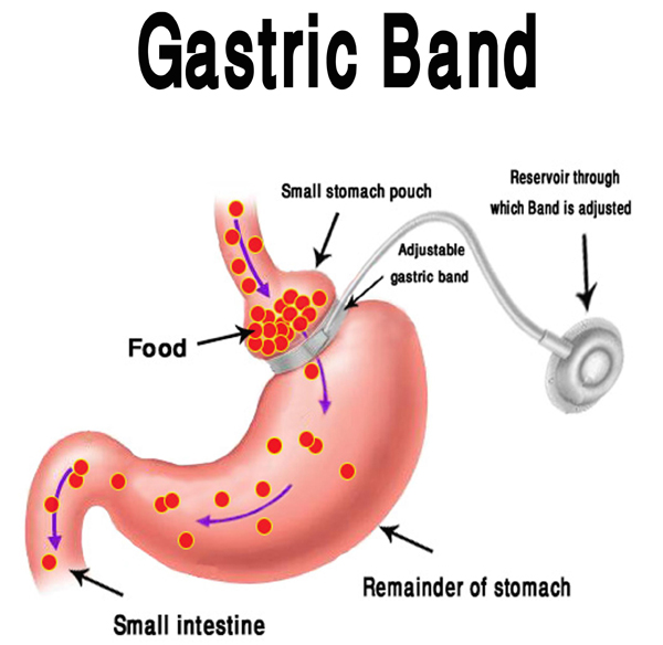 What Is Gastric Bypass Surgery?